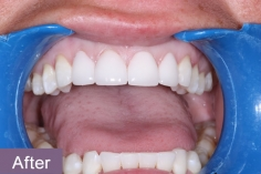 veneers1_after_xl