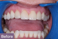 veneers1_before_xl