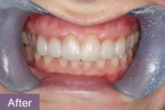 veneers2_after_xl