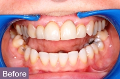 veneers2_before_xl
